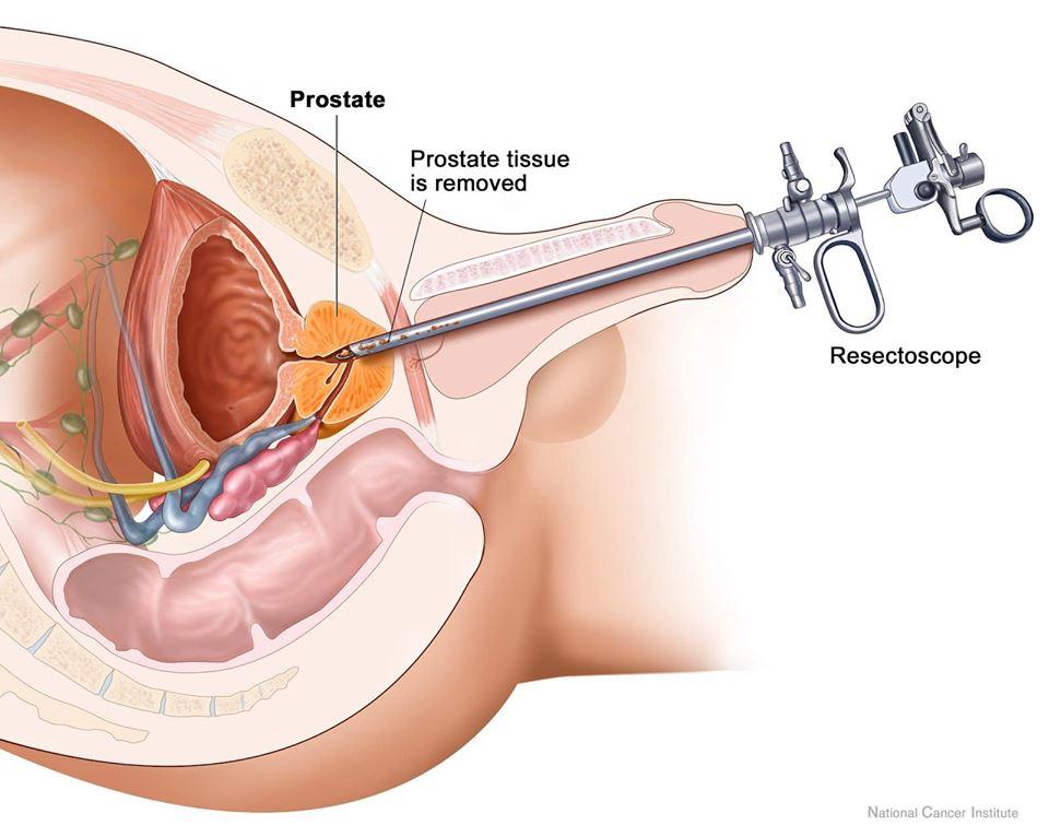 Nội soi cắt tiền liệt tuyến – Giải pháp điều trị phì đại lành tính tuyến tiền liệt